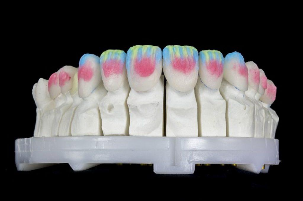 Wat is de beste verzorging van je prothese en kunstgebit?