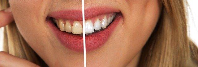 Wat is een goede tandpasta?